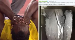 Usain Bolt shares X-ray of hamstring tear after people doubt his injury